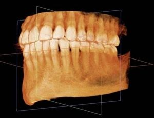 3D Imaging of Teeth