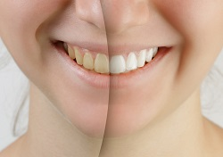 Smile Whitened Before and After