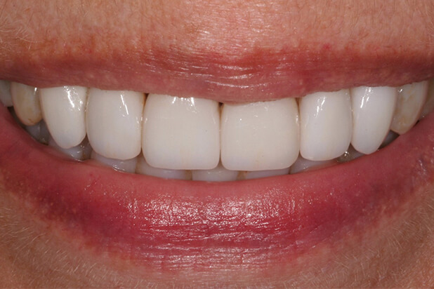 Barb's Smile After Veneers