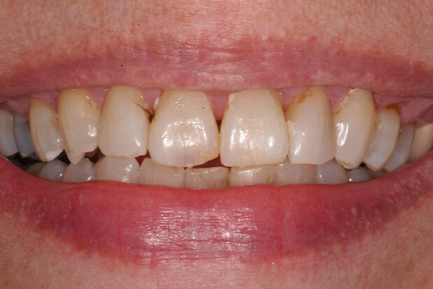 Barb's Smile Before Veneers