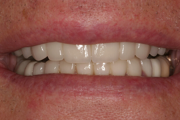 BJ's Smile After Cosmetic Treatment
