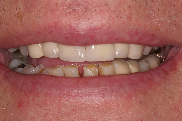 BJ's Smile Before Cosmetic Treatment