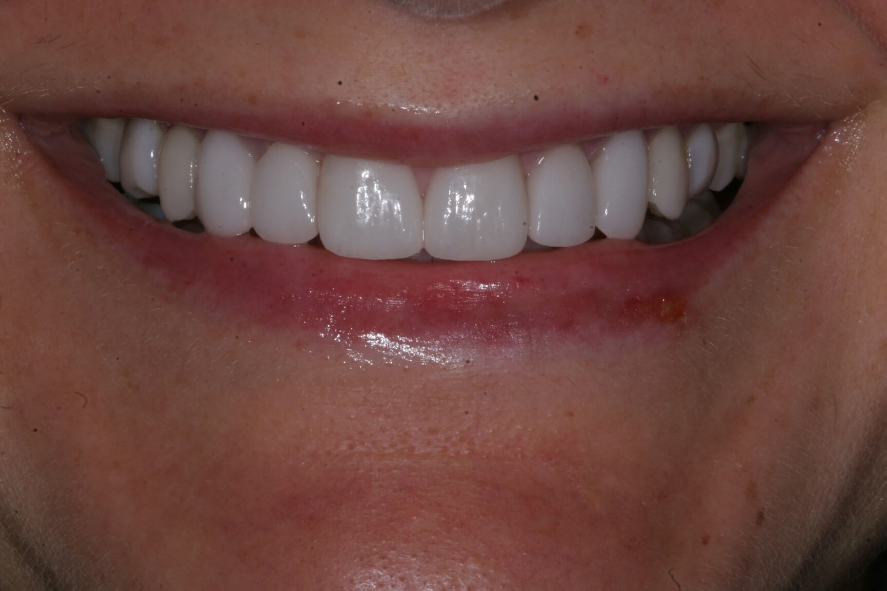 teeth whitening dentist in madison wisconsin