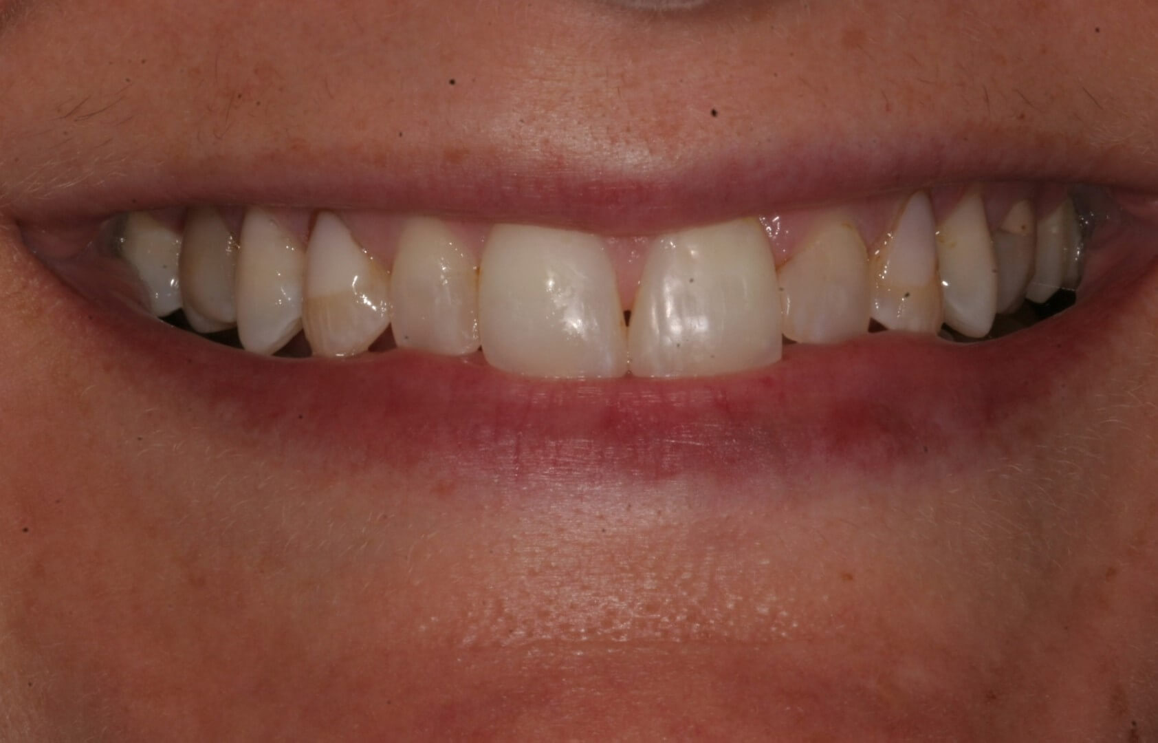 tooth restoration in madison