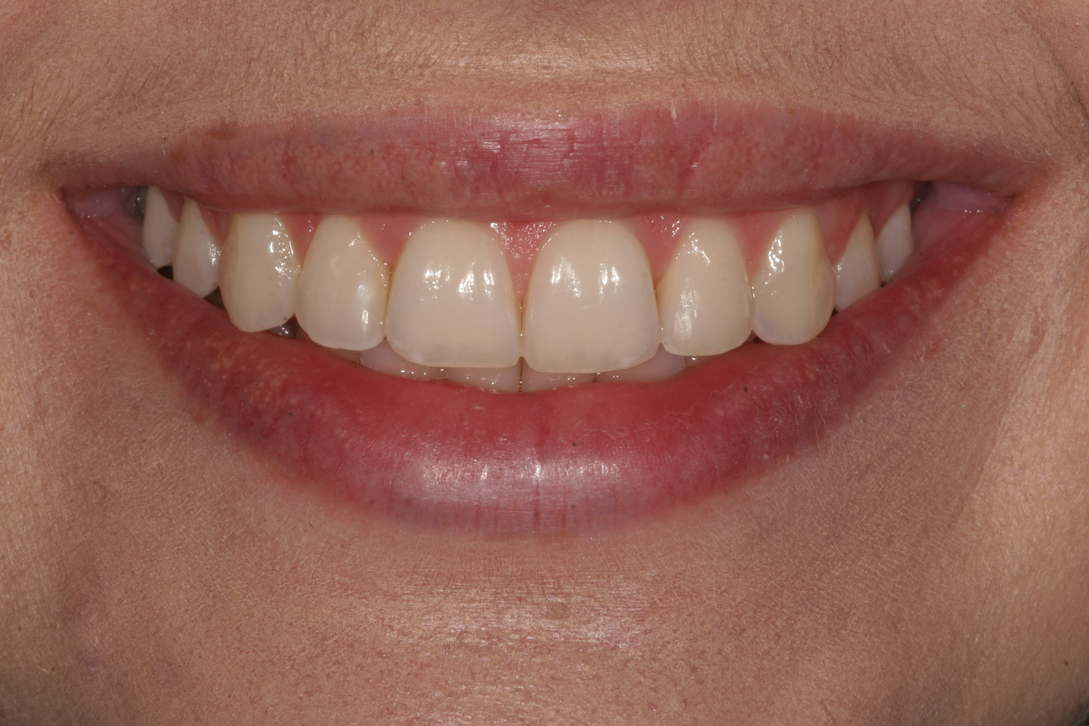 Gum and tooth reshaping in Madison, Wisconsin