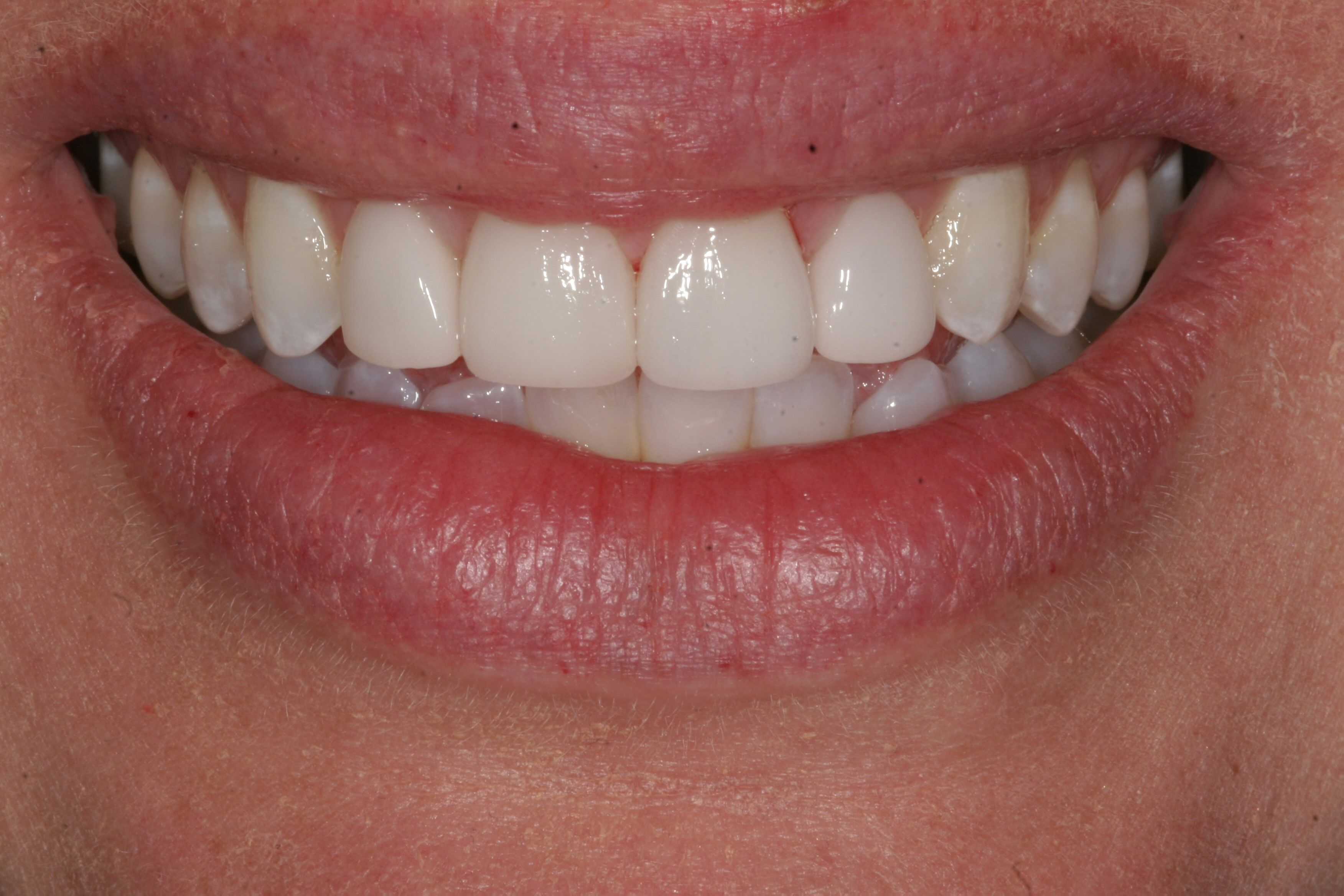 Invisalign & veneer dentistry in Wisconsin