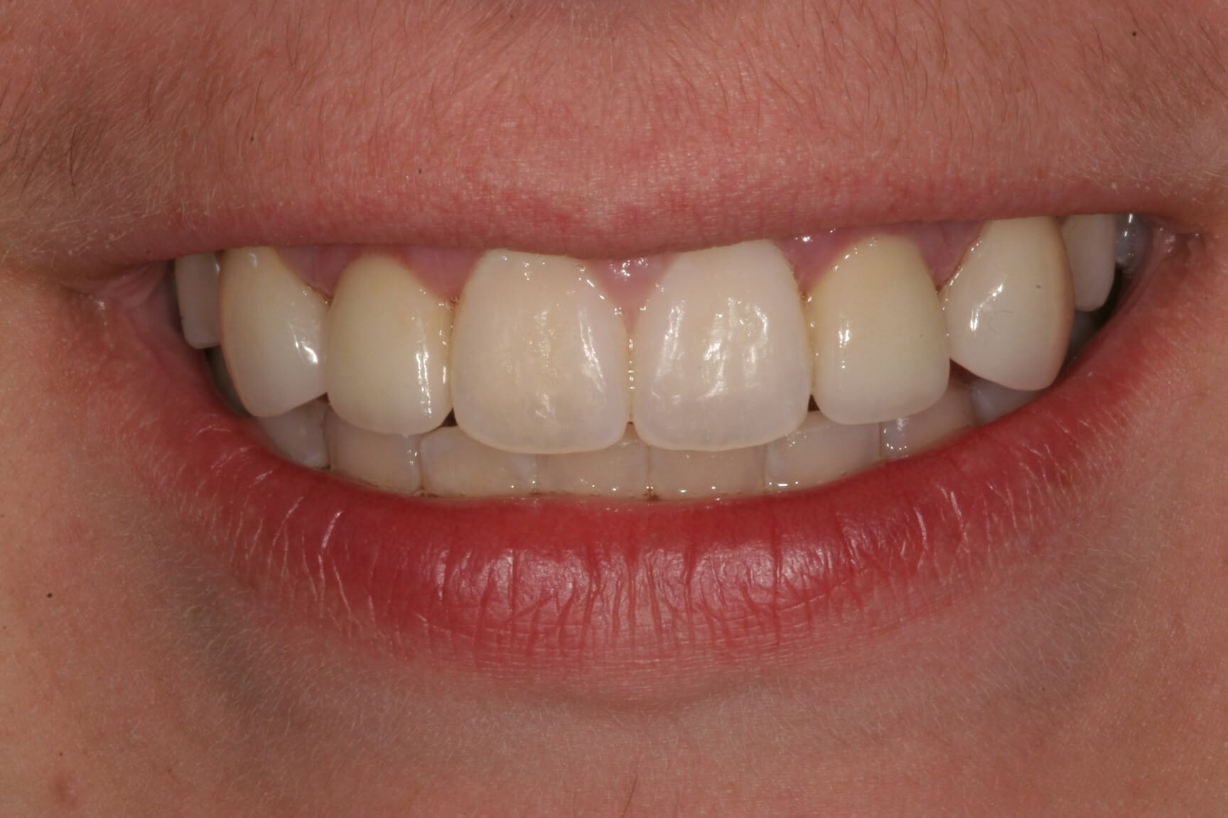 Aesthetic Gum and Bone Reshaping, two Dental Implants, and 4 Porcelain Restoration appointment in Madison
