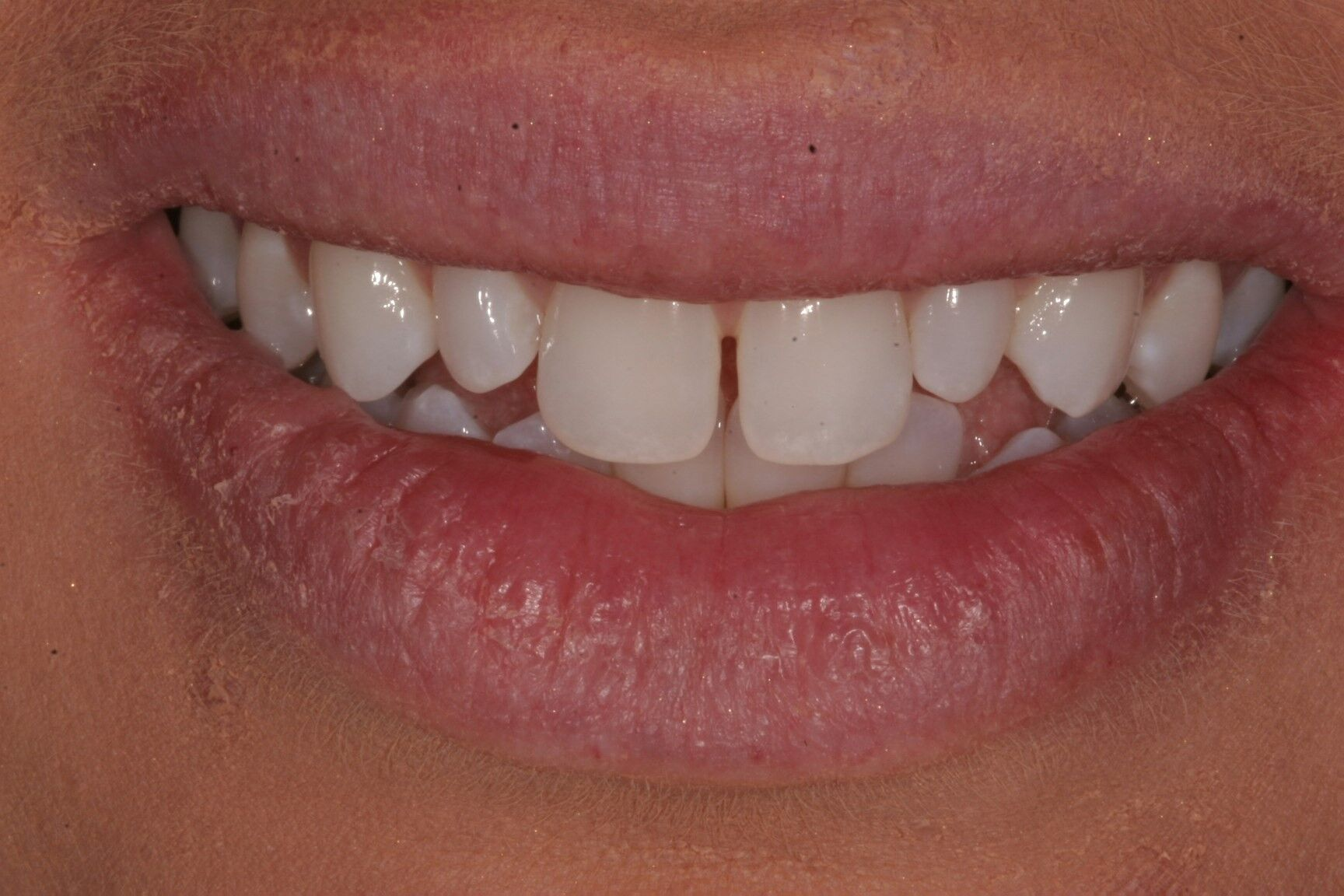 Invisalign success story Madison, WI