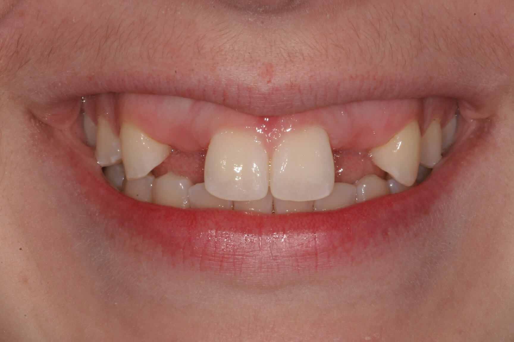 Aesthetic Gum and Bone Reshaping, two Dental Implants, and 4 Porcelain Restorations dentist in Madison