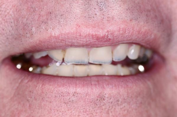 Total Care Dental Madison