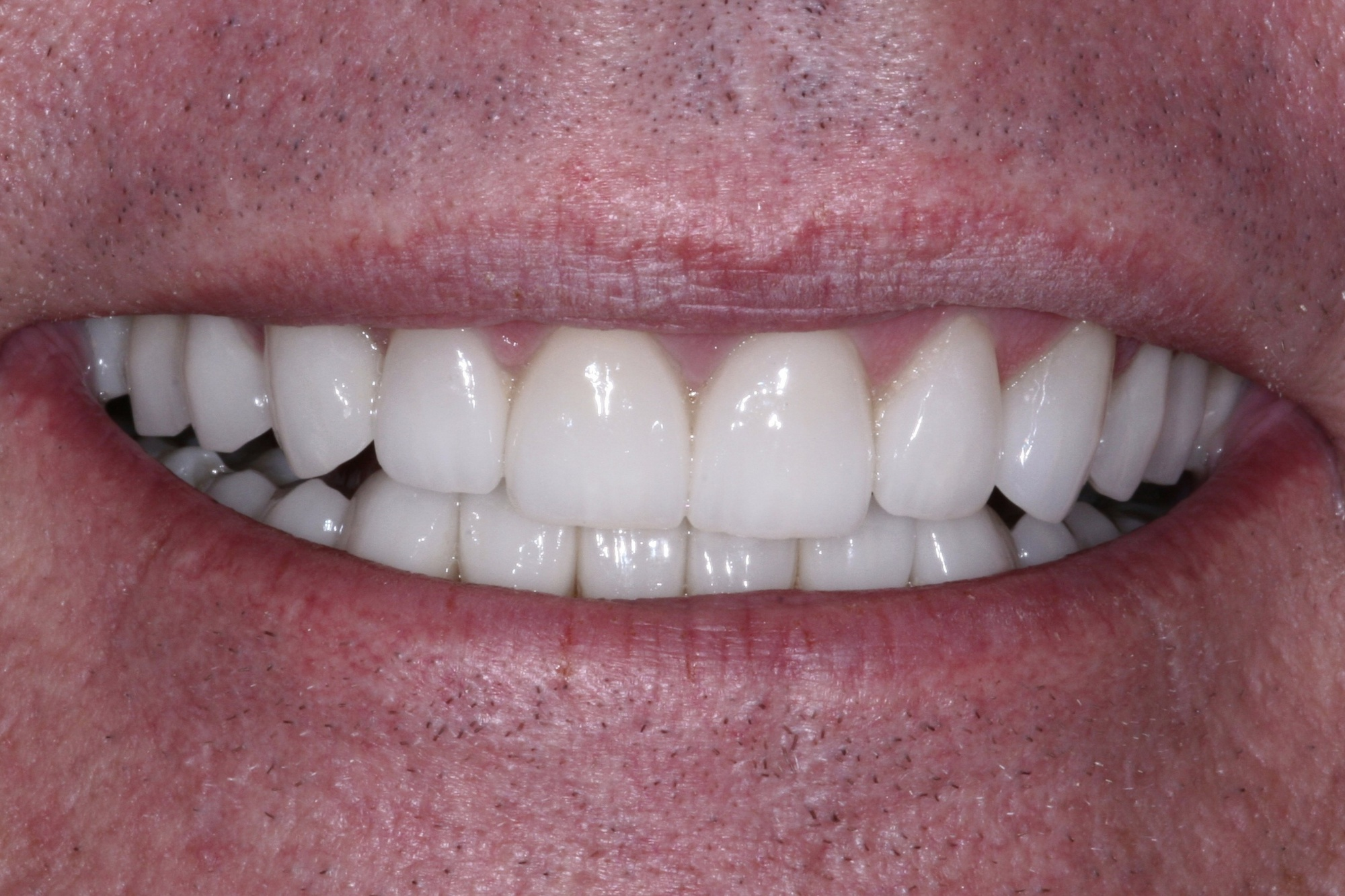 Steve's Smile After Cosmetic Dentistry Treatment