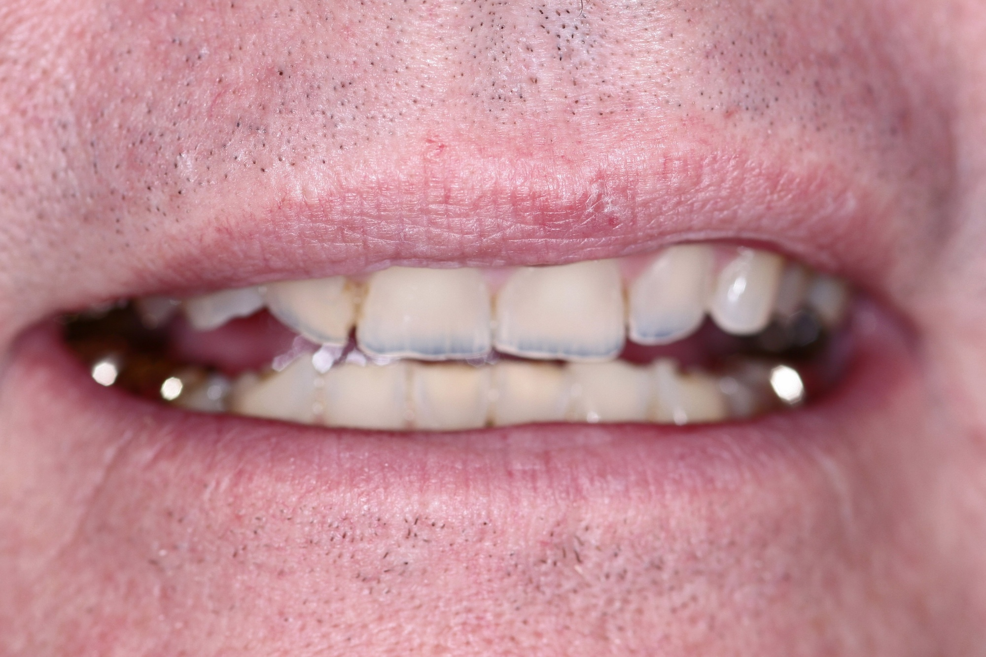 Steve's Smile Before Cosmetic Treatment