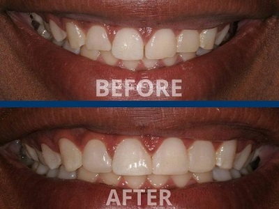 Smile Before and After Dental Contouring