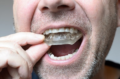 Mouth Guard for Bruxism