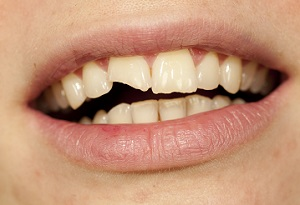 Chipped Tooth without Veneers
