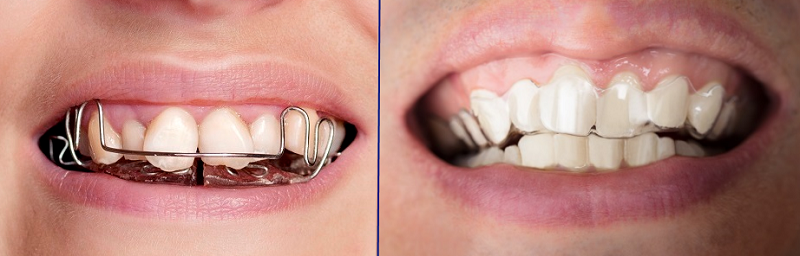 Invisalign Clear Braces for Adults and Teens | Teeth