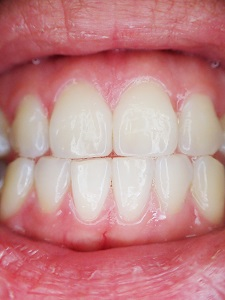 Dental Contouring Madison Aesthetic Dentistry Wisconsin