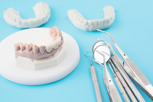 Dental Crowns and Bridges in Dane County