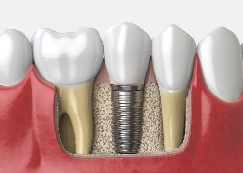 Affordable Dental implants from Madison Dentists