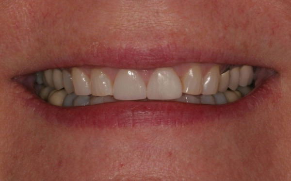 Cosmetic dentistry madison invisalign clear braces teeth cosmetic dentistry results solutioingenieria Choice Image