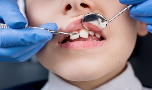 Kid Pediatric Dental Checkup in Madison