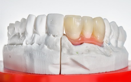 Dental Bridge for Lower Jaw
