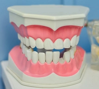 Mouth Model with Missing Teeth