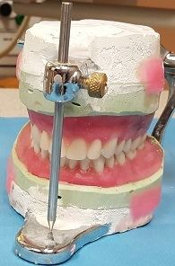 Example of Complete Dentures